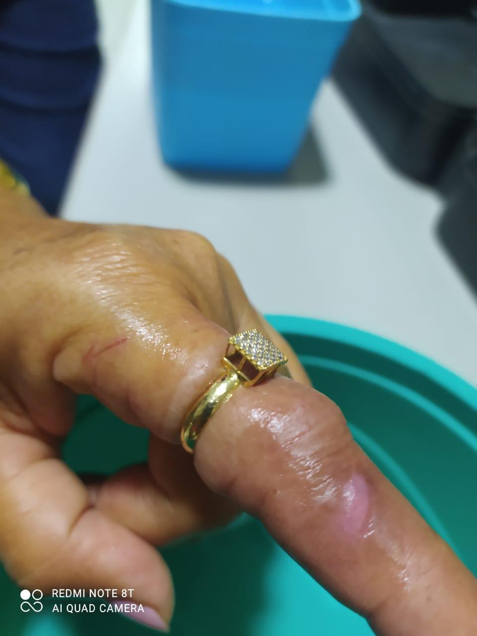 Bombeiros de Canindé retiram anel preso em dedo de Senhora
