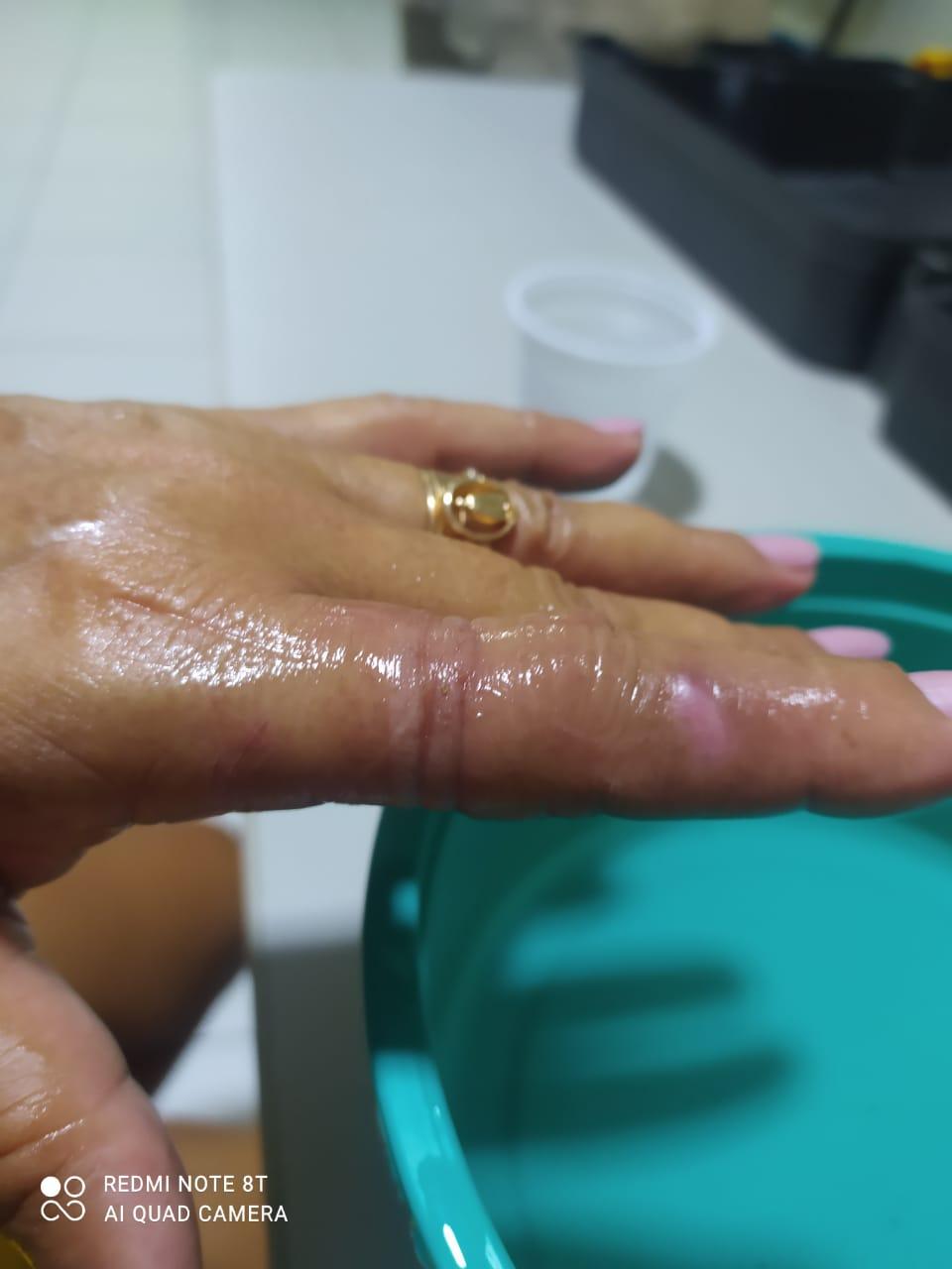 Bombeiros retiram anel preso em dedo